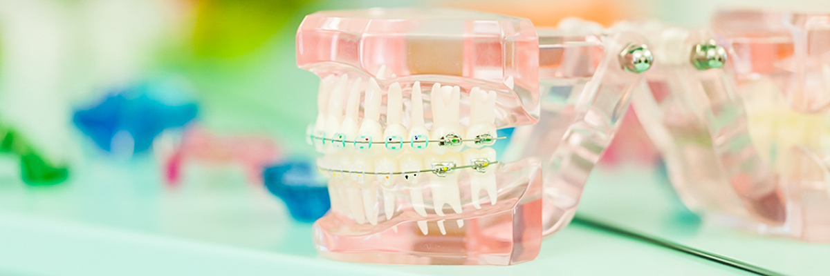 Specijalistička stomatološka ordinacija - ORTO4U