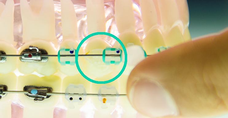 gubitak-breketa-ili-prstena-resenje-orto4u