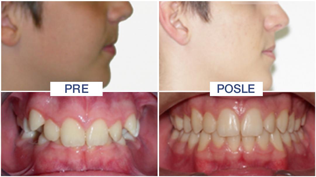 dubok zagrižaj - položaj zuba - ORTO4U