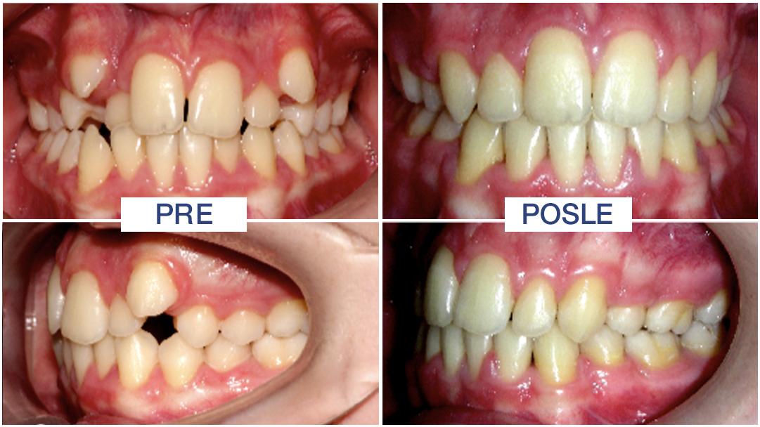 fiksna proteza uz vađenje zuba može Vam dati lep osmeh - ORTO4U