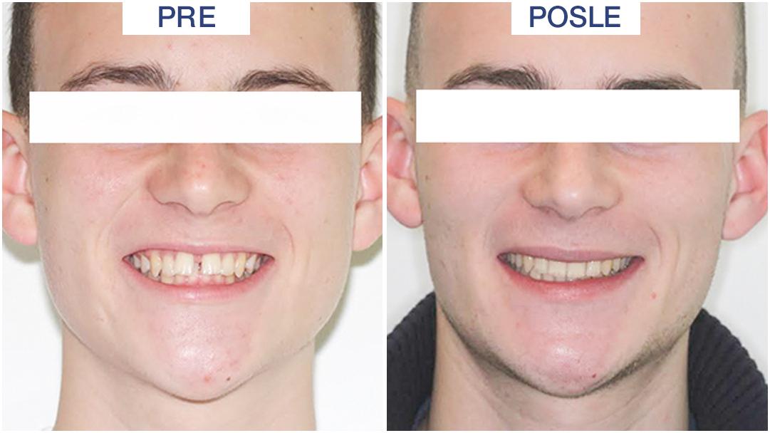razmak između zuba - ORTO4U