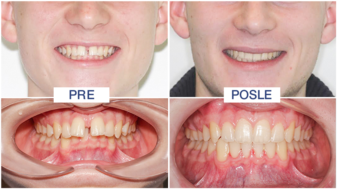 razmak između zuba lečenje - ORTO4U