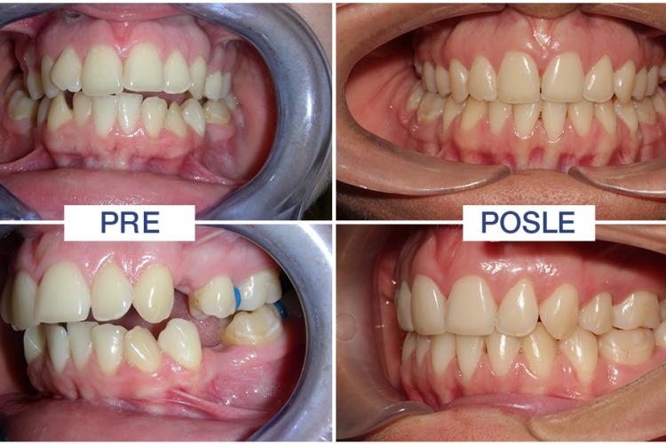 vađenje zuba iz ortodontskih razloga - ORTO4U