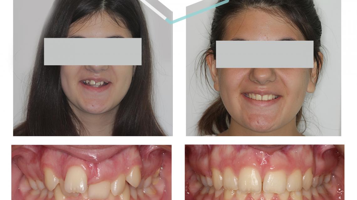 krivi-zubi-resenje-fiksna proteza-orto4u