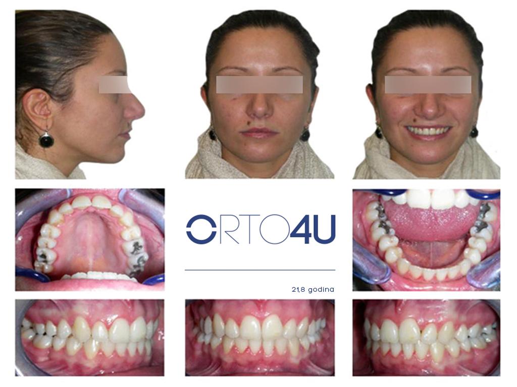 specijalisticka-stomatoloska-ordinacija-orto4u-galerija-osmeha-1024x768