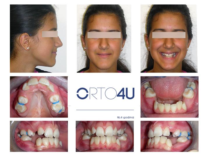 specijalisticka-stomatoloska-ordinacija-orto4u-galerija-osmeha