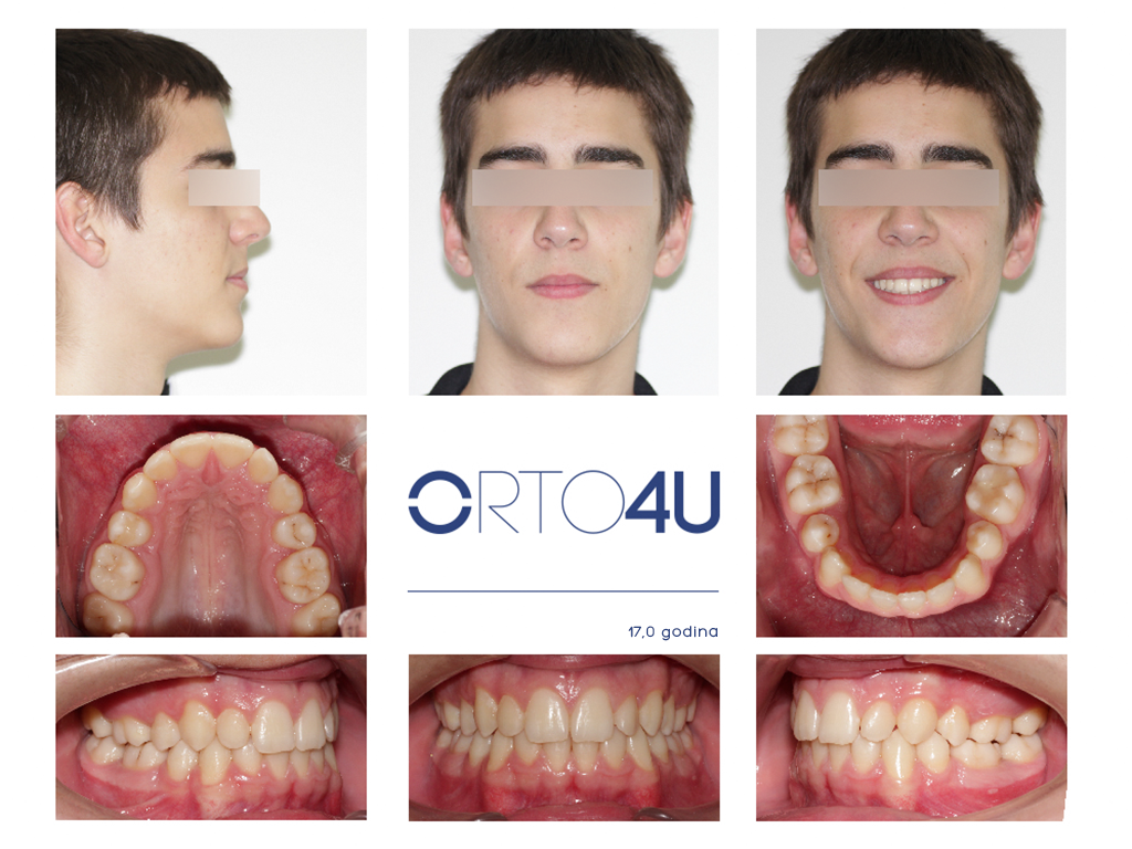 specijalisticka-stomatoloska-ordinacija-orto4u-galerija-osmeha10-1024x768