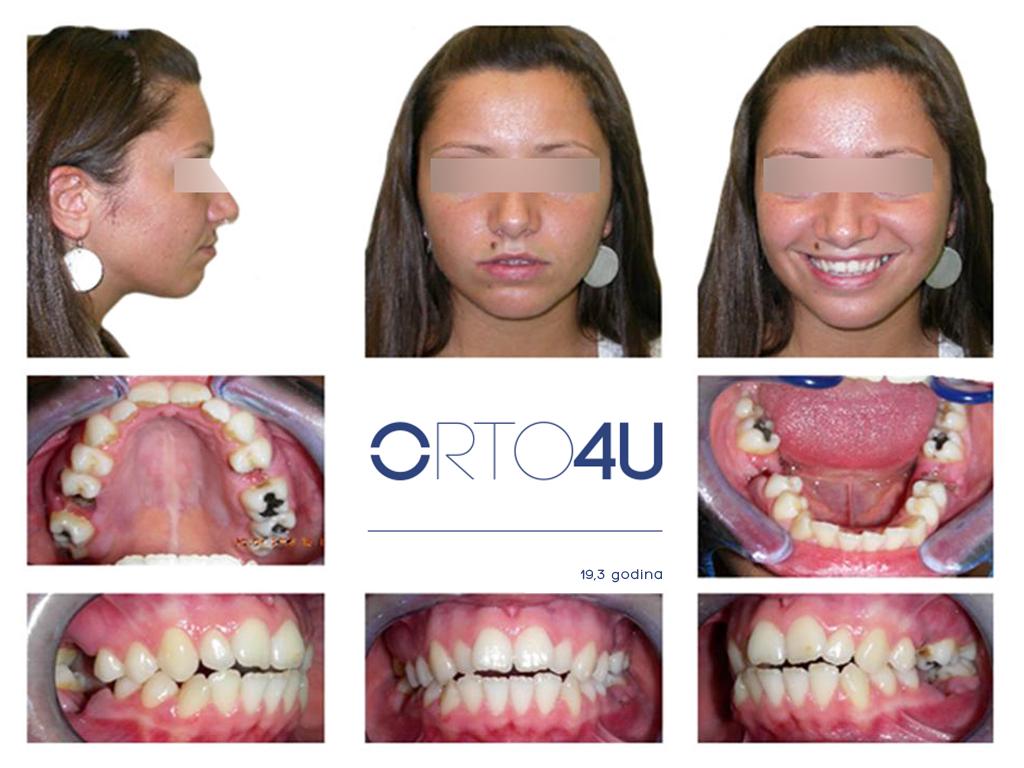 specijalisticka-stomatoloska-ordinacija-orto4u-galerija-osmeha2-1024x768