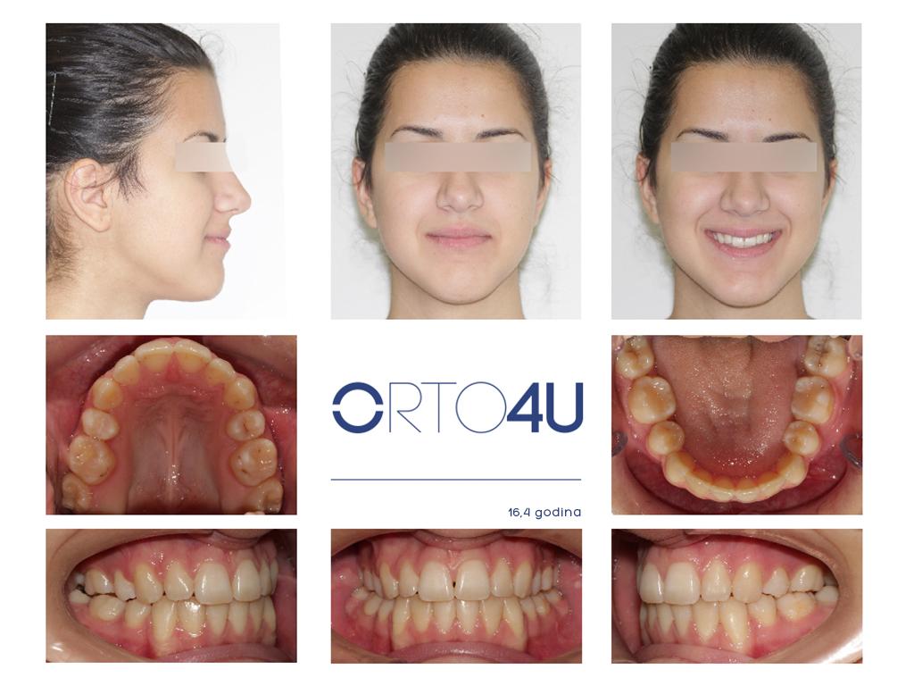 specijalisticka-stomatoloska-ordinacija-orto4u-galerija-osmeha3-1024x768