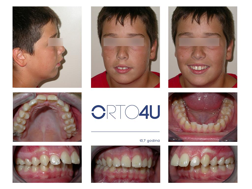 specijalisticka-stomatoloska-ordinacija-orto4u-galerija-osmeha4-1024x768