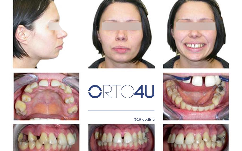 specijalisticka-stomatoloska-ordinacija-orto4u-galerija-osmeha6