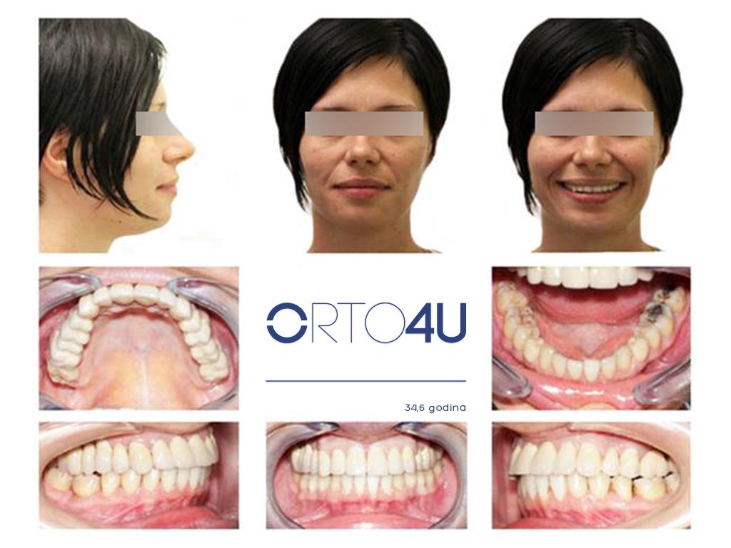 specijalisticka-stomatoloska-ordinacija-orto4u-galerija-osmeha7