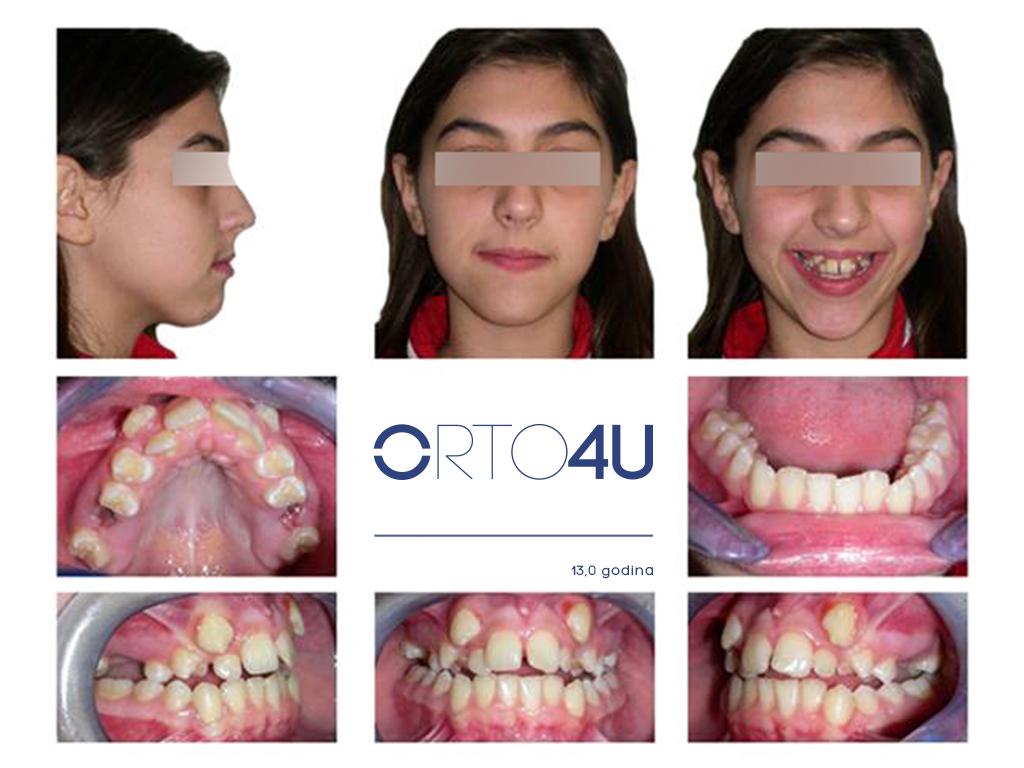 specijalisticka-stomatoloska-ordinacija-orto4u-galerija-osmeha8-1024x768